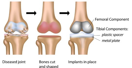 Physio-4 Therapies for Joint Replacement
